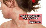 Atopik Dermatit için doğal çözümler